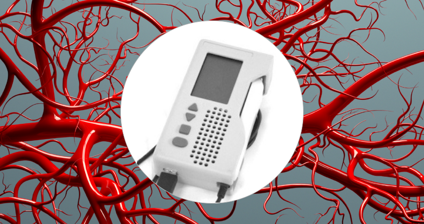 Blood Vessel Finder - Indus Instruments Engineering